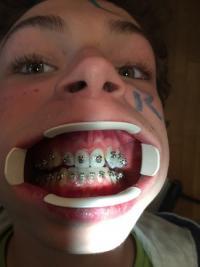 Brackets et dents. Collage en orthodontie utilisé par Mr. Baeten à Watermael-Boitsfort